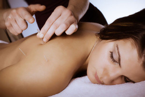 OTC_acupuncture
