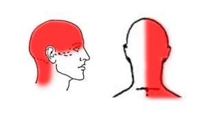 Cervicogenic headache pattern