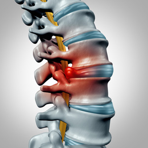 herniated disc treatment in Toronto