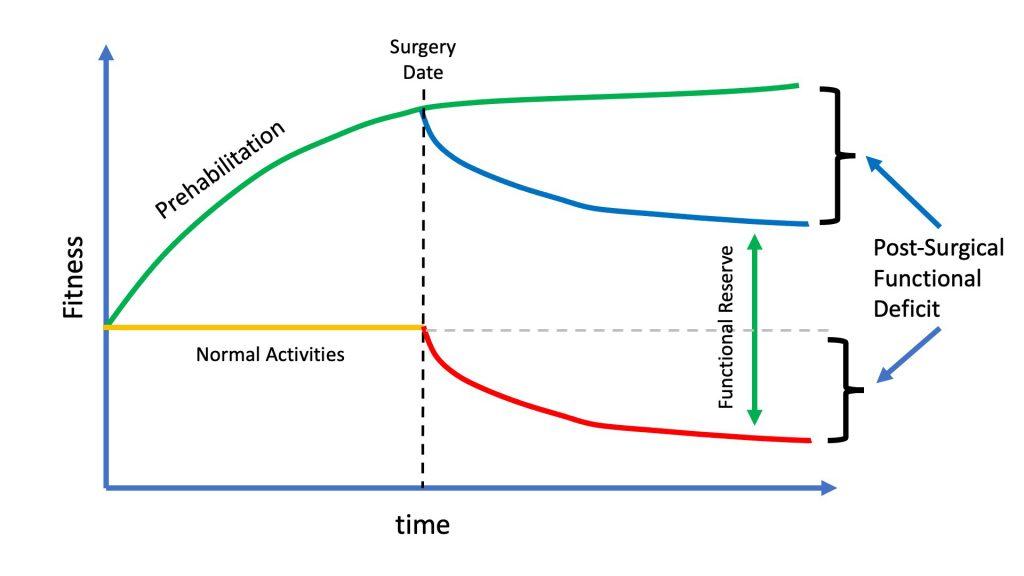 Effect of prehabilitation on postsurgical success